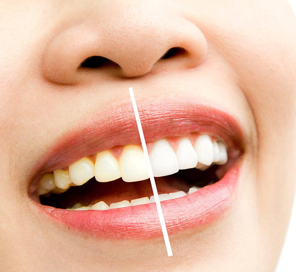 Zahnaufhellung vorher nachher | Der Jungbrunnen Aichach