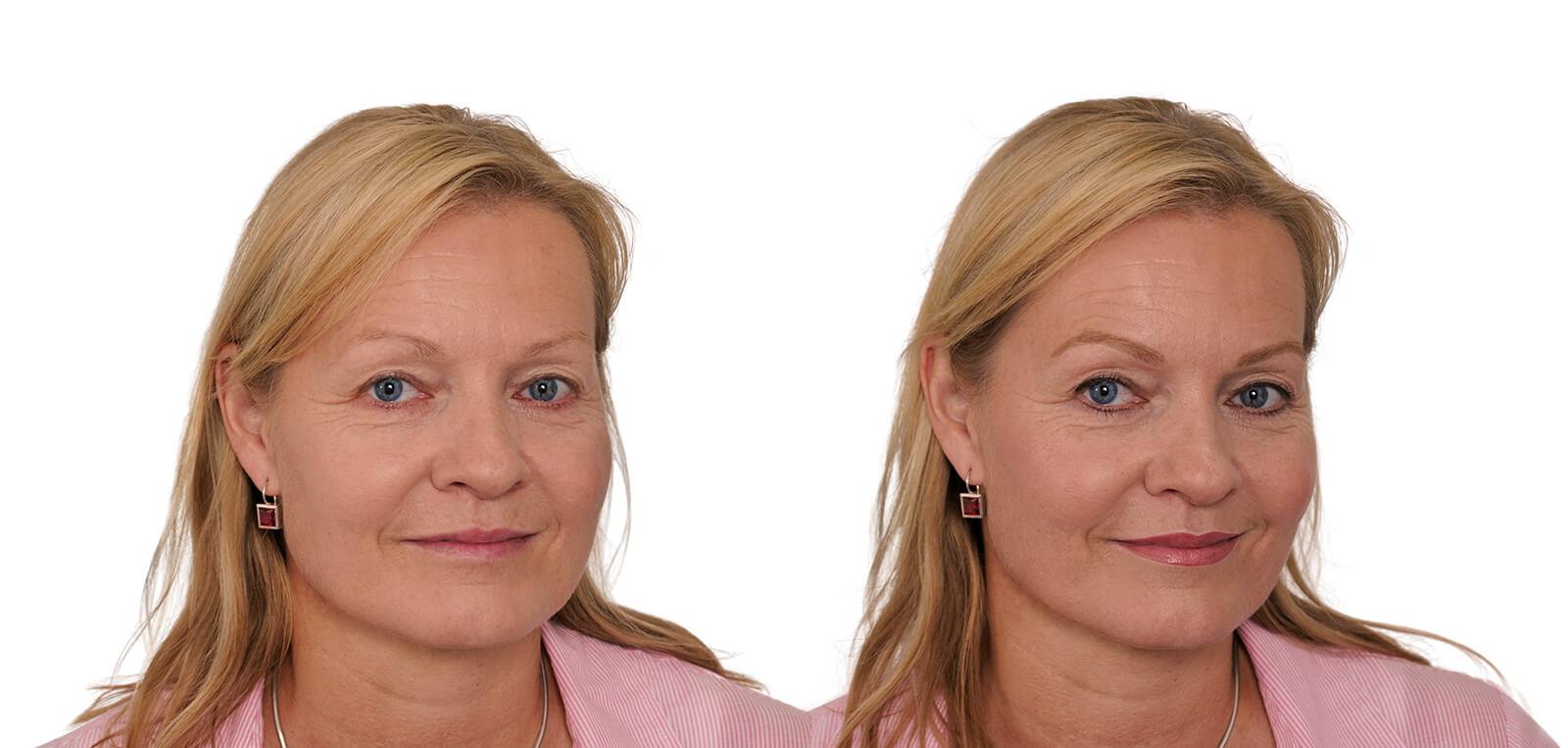 Permanent Make-Up vorher/nachher komplett Damen 05 | Der Jungbrunnen Aichach