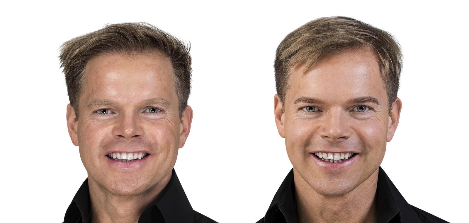 Permanent Make-Up Herren vorher/nachher komplett 01 | Der Jungbrunnen Aichach