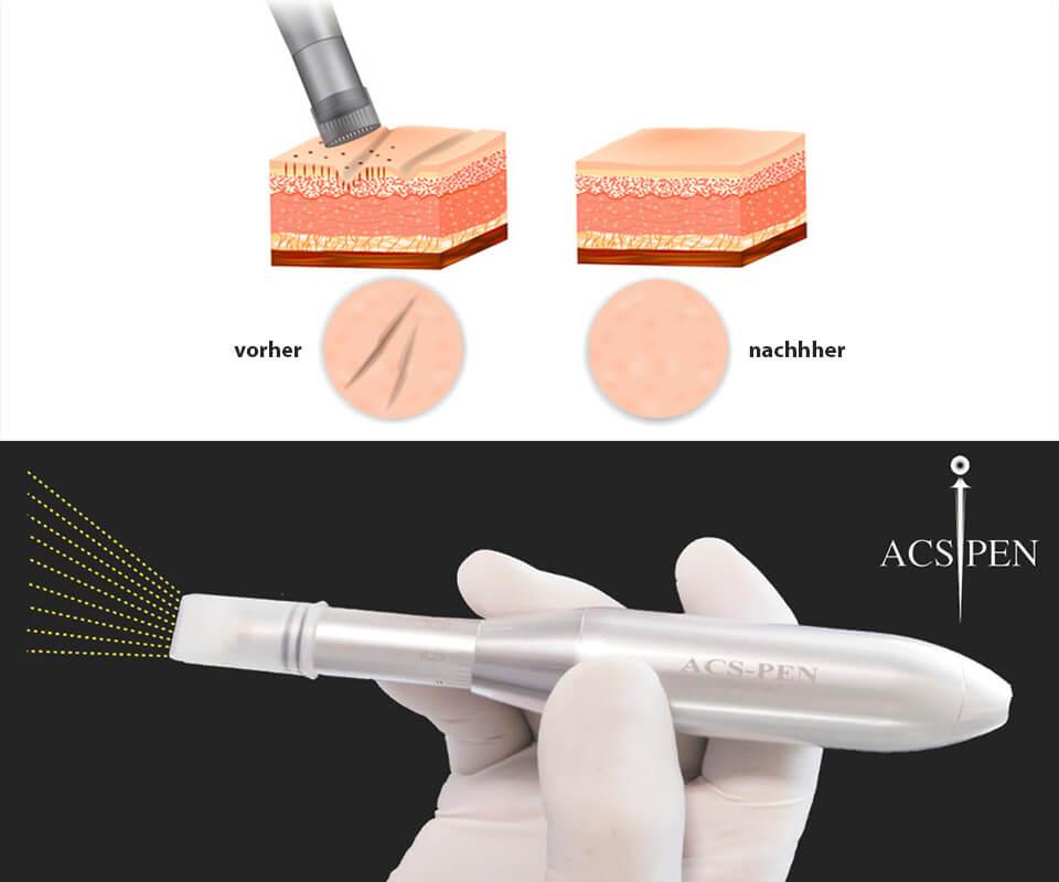 Behandlung-Microneedling-acs-pen